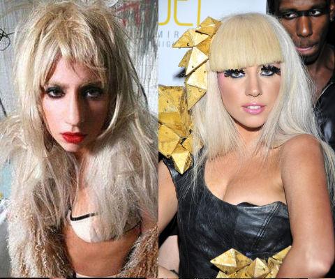 Lady Gaga Se Opera La Nariz